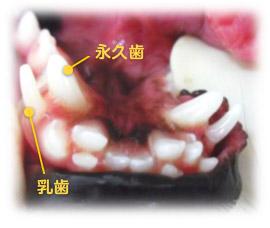乳歯遺残(にゅうしいざん)